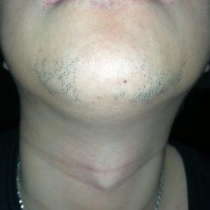 ヒゲ脱毛6回目から1ヶ月経過したヒゲの写真