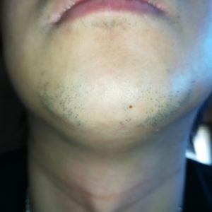 ヒゲ脱毛6回目から2ヶ月経過したヒゲの写真
