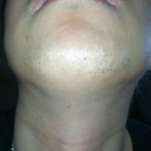 ヒゲ脱毛7回目から2ヶ月経過したヒゲの写真