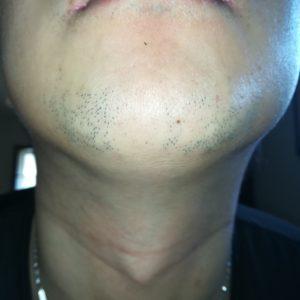 ヒゲ脱毛7回目から5ヶ月経過したヒゲの写真