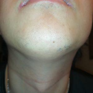 ヒゲ脱毛8回目から1ヶ月経過したヒゲの写真