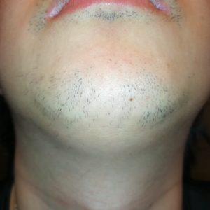ヒゲ脱毛8回目から2ヶ月経過したヒゲの写真