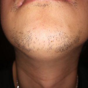 ヒゲ脱毛8回目から3ヶ月経過したヒゲの写真