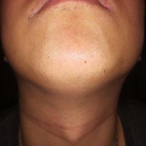 10回目のヒゲ脱毛から約1ヶ月経過したヒゲの写真