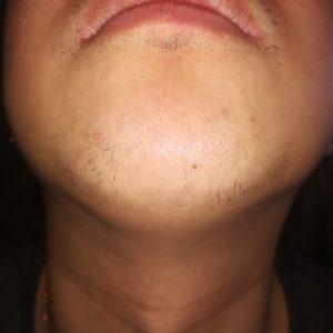 10回目のヒゲ脱毛から約2ヶ月経過したヒゲの写真